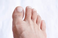 Reducing the Symptoms of Gout