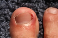 Do I Have An Ingrown Toenail?